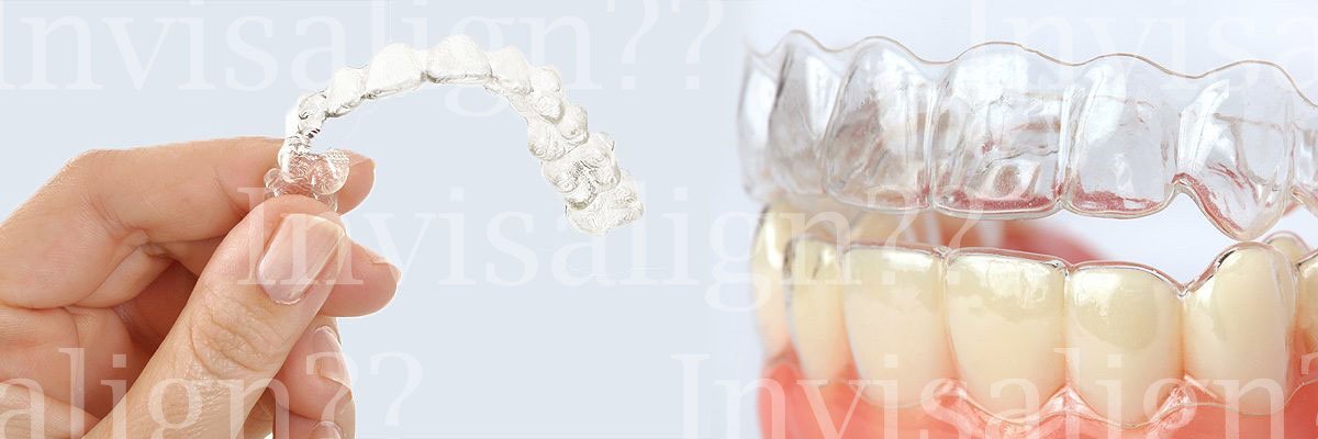 Irvine Does Invisalign® Really Work?