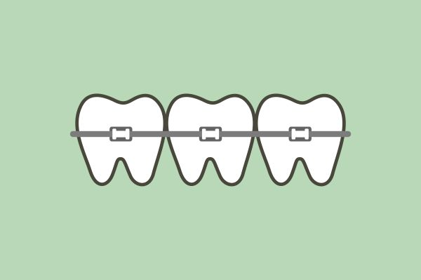 Best Ways To Straighten Teeth