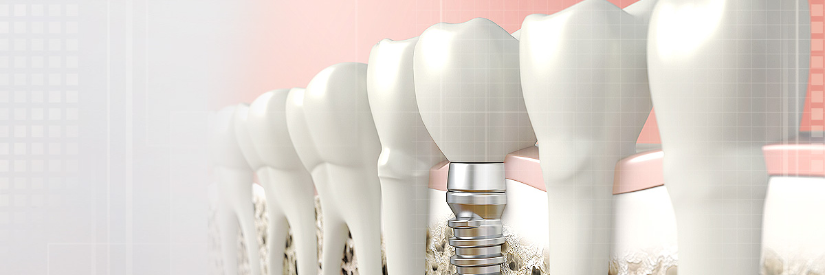 Irvine Implant Dentist