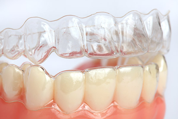 Invisalign® Braces: Facts About The Process