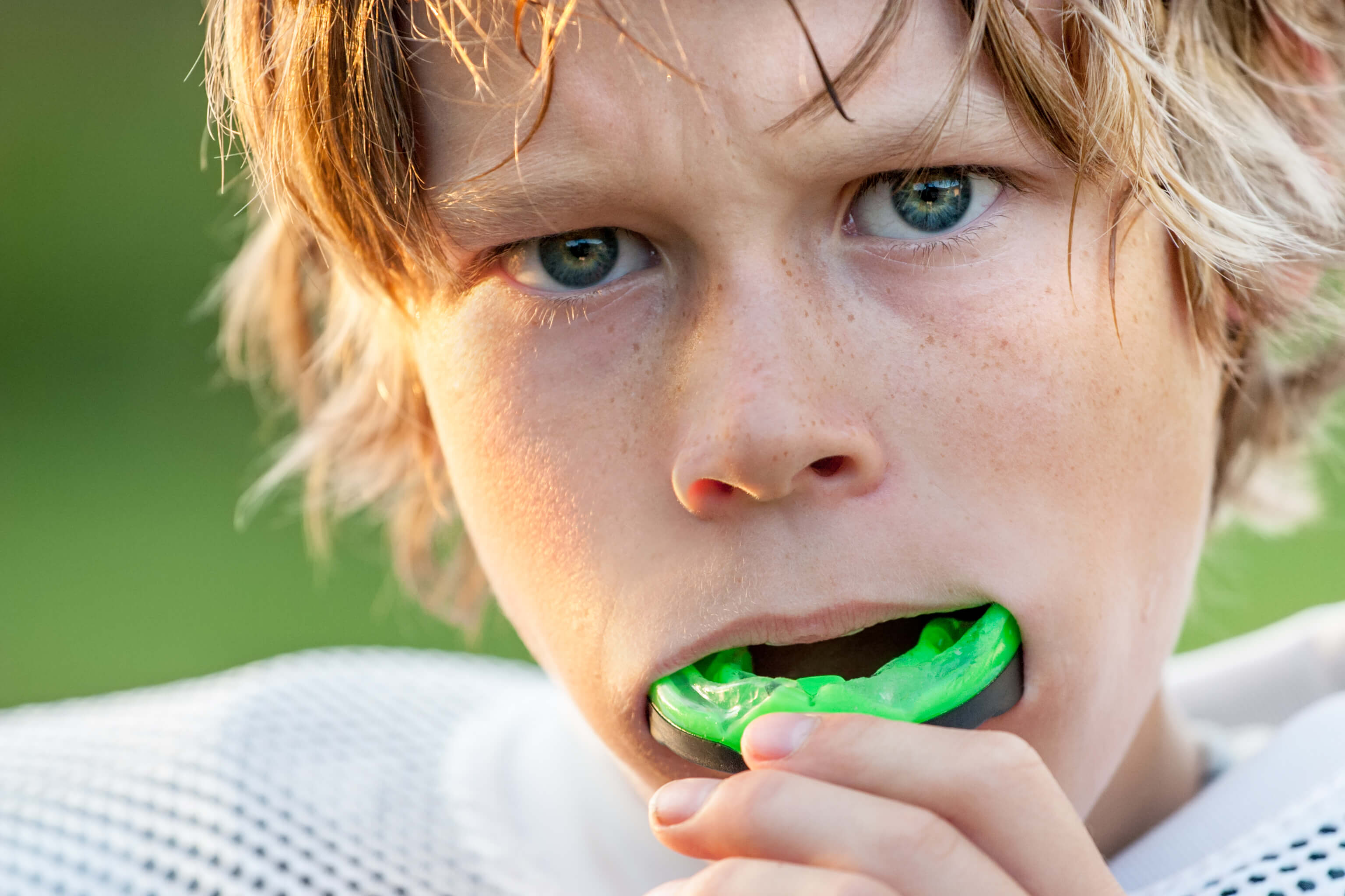 What You Need To Know About Mouthguards Before Buying