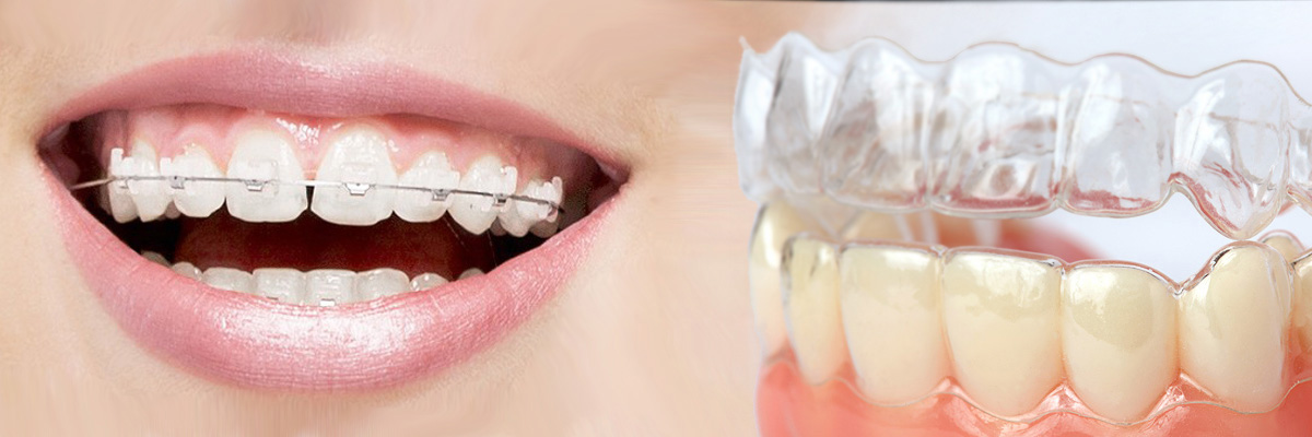 Irvine Which is Better Invisalign or Braces